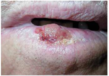 VPH-Carcinoma Espinocelular
